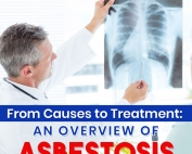 From-Causes-to-Treatment-An-Overview-of-Asbestosis-Featured-Image